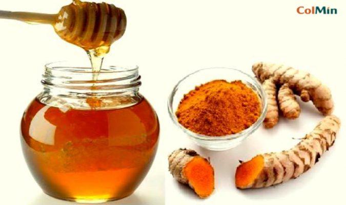 Chữa viêm đại tràng bằng nghệ mật ong