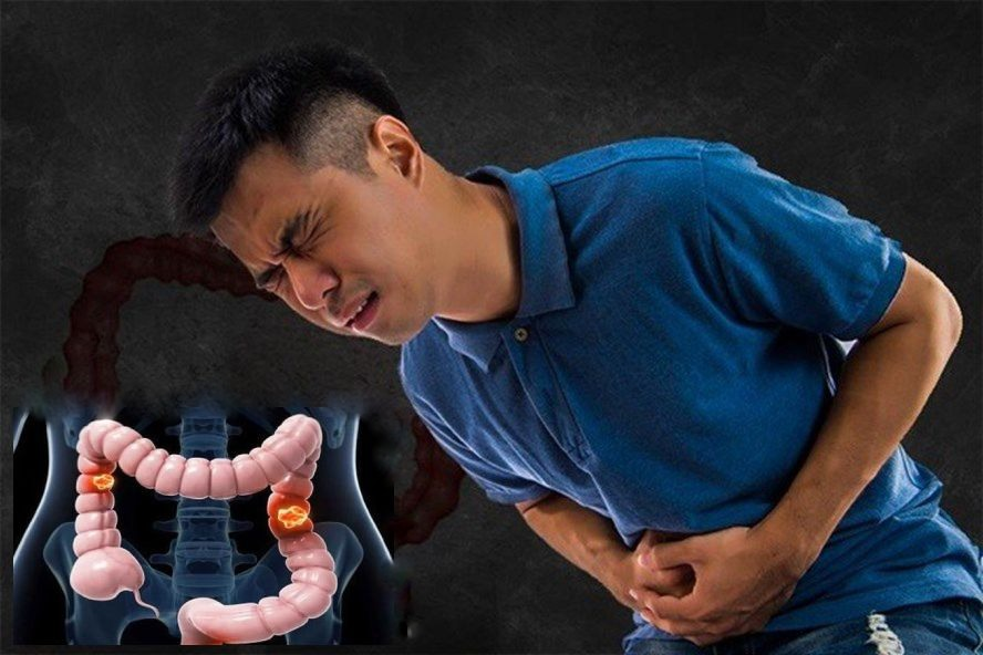 Bênh nhân viêm đại tràng thường đau bụng dưới hoặc dọc khung đại tràng