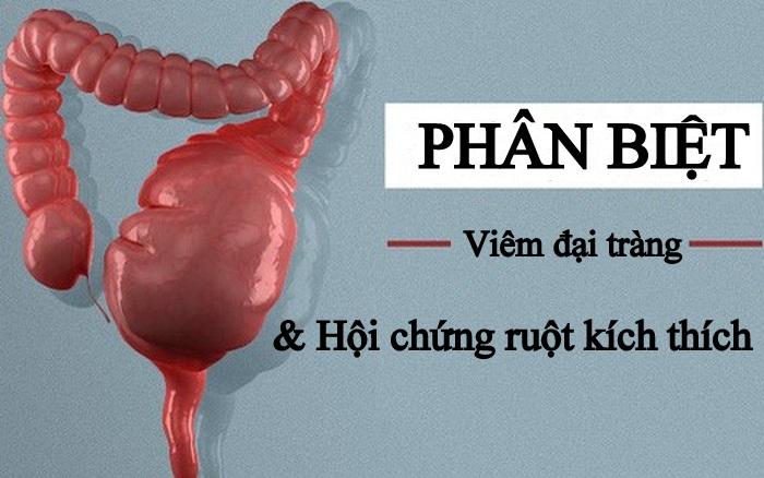 phan-biet-viem-dai-trang-va-hoi-chung-ruot-kich-thich